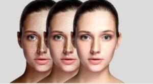 Ácido Kójico elimina las pecas y manchas de la piel